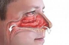 Симптоми і лікування гаймориту