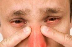 Перші ознаки й лікування гаймориту у дорослих