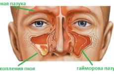 Хронічний гайморит