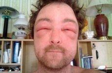 Засоби для лікування алергічного нежитю