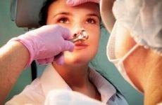 Симптоми, види, лікування гострих синуситів