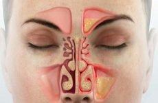 Гострий і хронічний Риносинусит: причини, симптоми, лікування