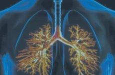 Позалікарняна пневмонія: симптоми, лікування (дорослих, дітей)