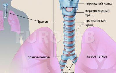 Гострий трахеїт симптоми, причини, діагностика та лікування