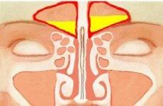 Симптоми фронтиту і ранні ознаки захворювання