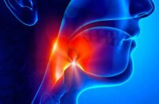 Лікування гнійної ангіни по кроках: що потрібно робити