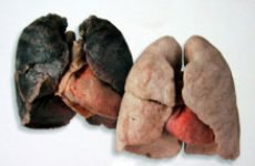 Бронхіт курця, симптоми захворювання, причини і лікування