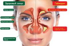 Гострий гайморит – симптоми і лікування, прогноз