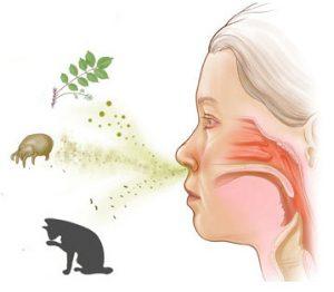 Як лікувати алергічний риніт