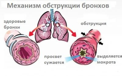 Обструктивний бронхіт: причини у дітей і дорослих, симптоми, препарати для лікування