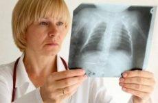 Лікування пневмонії, правила комплексного підходу