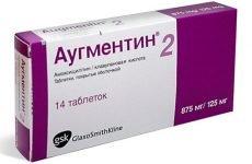 Чи потрібно пити антибіотики при ангіні?