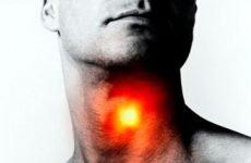 Трахеїт: ознаки симптоми гострого і хронічного трахеїту