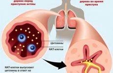 Причини бронхіальної астми, всіх форм