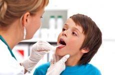 Лікування грибкової ангіни у дітей і дорослих