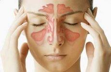 Хронічний гайморит: симптоми, лікування препаратами і народними засобами