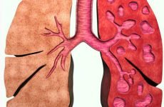 Бронхоектатична хвороба: причини, симптоми, лікування