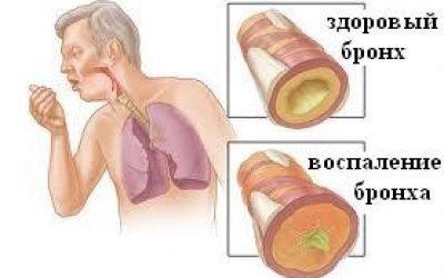 Загострення хронічного бронхіту: лікування і препарати