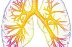 Лікування гострого бронхіту будинку, загальні рекомендації по лікуванню