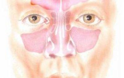 Хронічний фронтит, симптоми і лікування