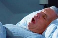 Хропіння у чоловіків: причини і лікування чоловічого хропіння