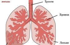 Симптоми запалення легенів (Пневмонія)
