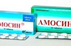 Якими ліками потрібно лікувати гнійну ангіну в домашніх умовах?