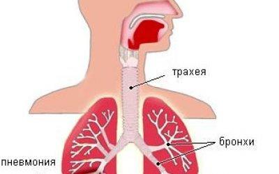 Крупозна пневмонія: причини, симптоми, лікування