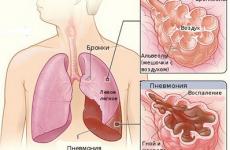 Пневмонія у дітей: причини, симптоми, лікування