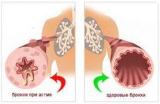 Лікування бронхіальної астми народними засобами