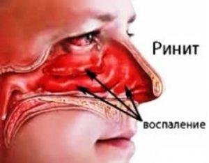 Симптоми риніту за стадіями і ускладнення