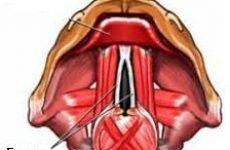 Лікування ларингіту, лікування гострого та хронічного ларингіту