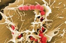 Ангіна — це бактеріальне захворювання, або вірусне?