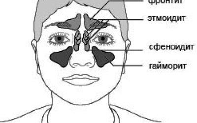 Етмоїдит у дітей, симптоми і лікування