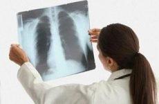 Запалення легенів: причини, симптоми, лікування