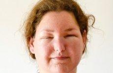 Ознаки алергічного нежитю
