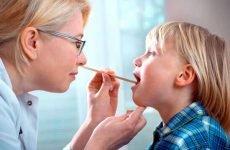 Вірусна ангіна у дітей: фото і симптоми хвороби