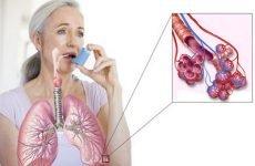 Лікування астми в домашніх умовах народними методами