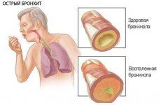 Симптоми бронхіту – принципи діагностики та лікування