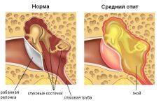 Отит середнього вуха: стадії, симптоми, лікування