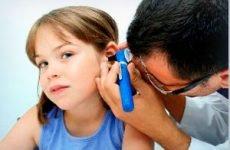 Катаральний отит середнього вуха: лікування і симптоми гострого середнього отиту у дітей