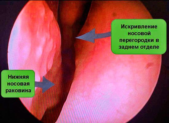 Искривление носовой перегородки и беременность