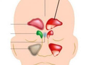 Гострий фронтит симптоми і лікування