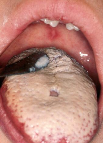 симптомы грибка в горле снежного