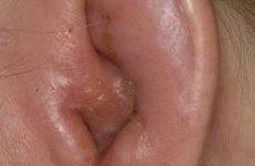 Симптоми і лікування зовнішнього отиту