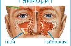 Симптоми гаймориту: ознаки гострої та хронічної форми