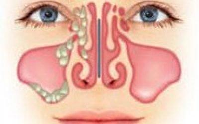Симптоми етмоїдиту