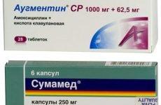 Який препарат — Сумамед або Аугментин — краще застосовувати при ангіні?