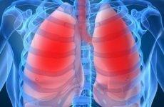 Симптоми пневмонії і ознаки інших пневмоній