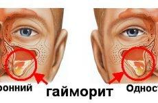 Двосторонній гайморит: симптоми, лікування